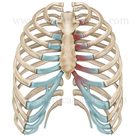 costo chondritis | human rib cage | costochondritis | pinterest, Skeleton