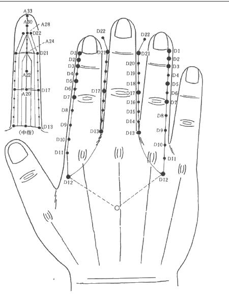 Pin de Igor ibn-Ivanoff en Судзи-чимсур ( 高麗手指鍼とは)(Koryo