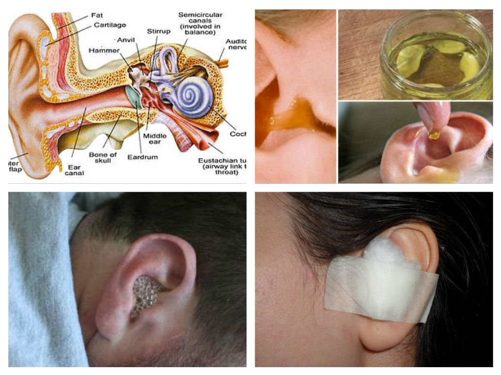 Ear Infections Are Most Commonly A Result Of Bacteria And Viruses In The Middle Ear These Infections Happen To Ear Infection Cure Ear Infection Fluid In Ears