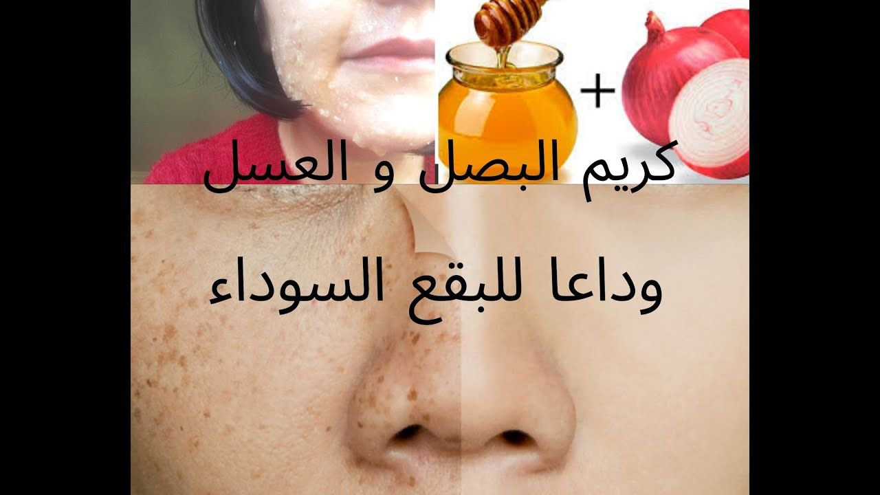 وصفة البصل والعسل لعلاج النمش و الكلف و البقع البنية من البشرة و الوجه Hand Soap Bottle Soap Bottle Hand Soap