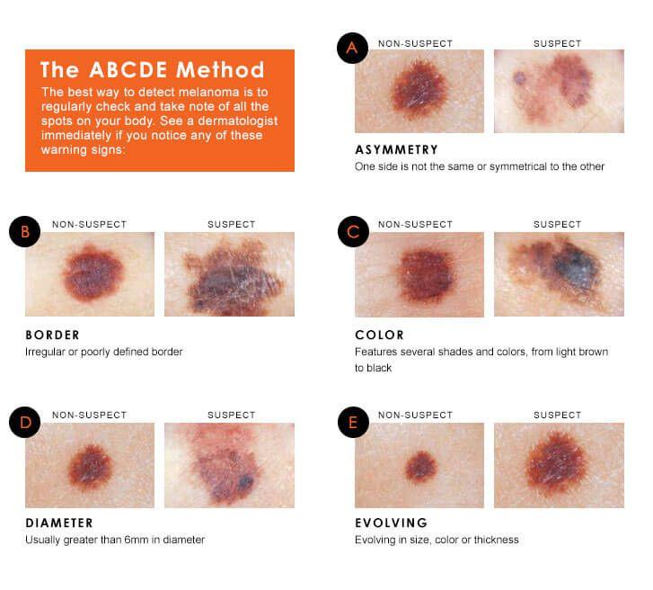 Natural Treatment For Melanoma Skin Cancer