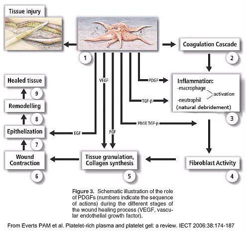 Tissue Healing Process Massage Techniques Soft Tissue Injury Sports Massage