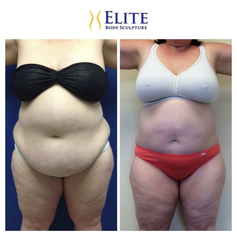 Airsculpt Can Even Remove Excess Skin From Weightloss Or Pregnancy