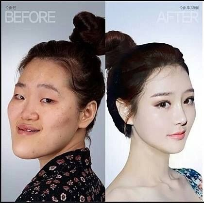 Before After Surgery In Korea She Never Learned To Embrace Her Own Beauty Korean Plastic Surgery Face Surgery V Line Surgery