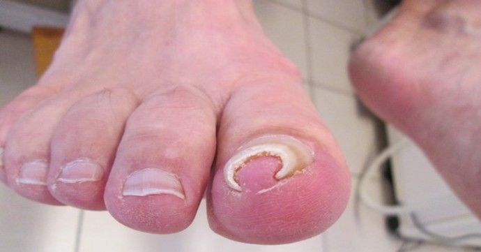 Treat Ingrown Toe Nails With 2 Incredibly Simple Solutions | Feet ...