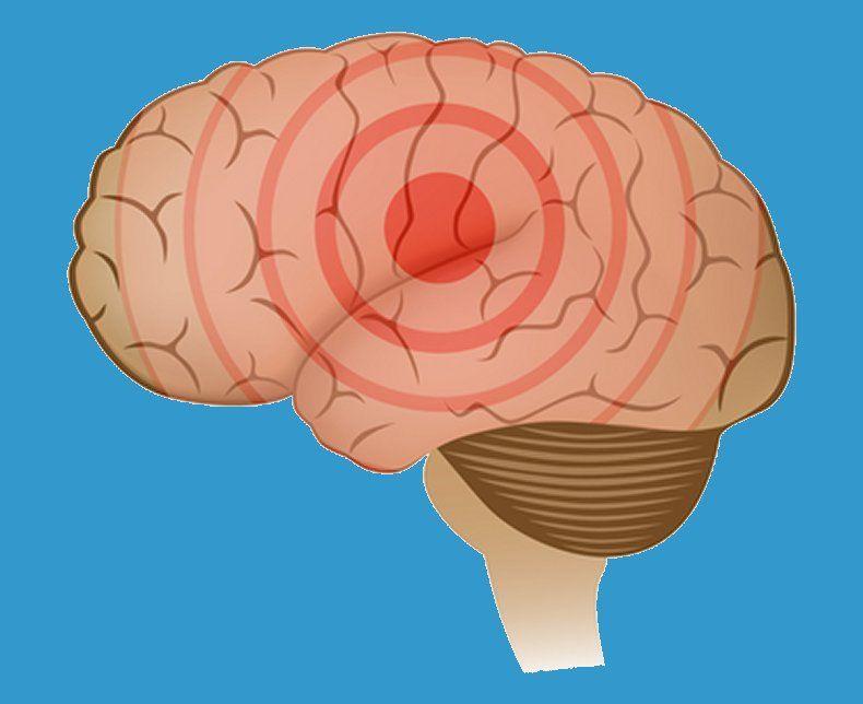 Generaliserede epilepsianfald Epilepsiforeningen