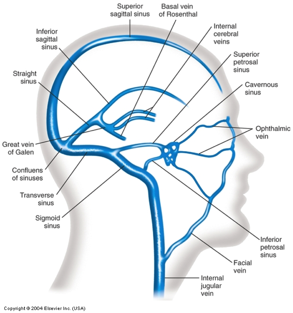venous sinuses of the brain - Google Search | PT | Pinterest | Brain ...