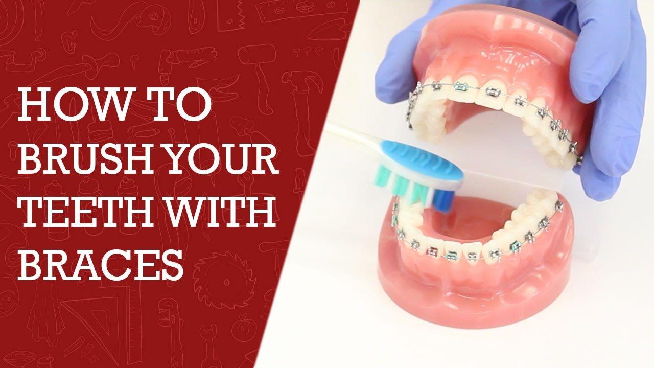 How to brush teeth with braces orthodontics tips