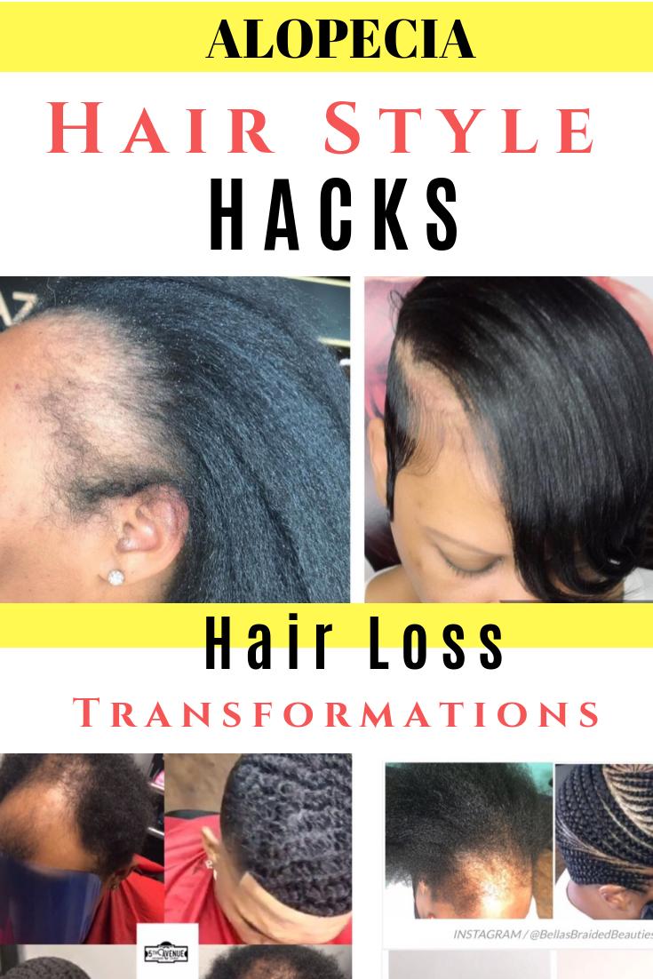 Wow Edges Renewed By Razorchicofatlanta Black Hair Information Community Severe Hair Loss Short Natural Hair Styles Razor Chic