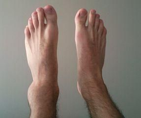 heal twisted ankle fast diet
