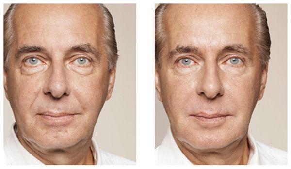 Fotos De Rejuvenescimento Com Colageno Antes E Depois Botox