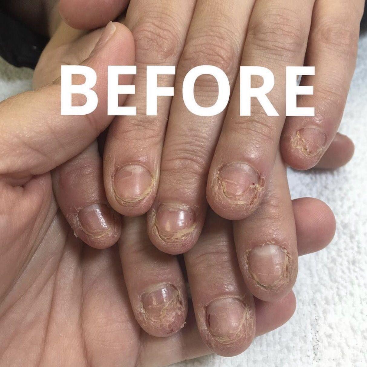 Solarnails Acrylic Gel Methyl Methacrylate Mma Solar Nails Gel Vs Acrylic Nails Pink Acrylic Nails