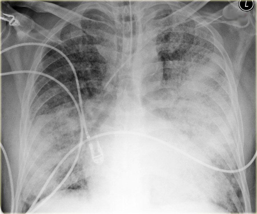 Beste Anatomie Der Brust X Ray Galerie - Menschliche Anatomie Bilder ...