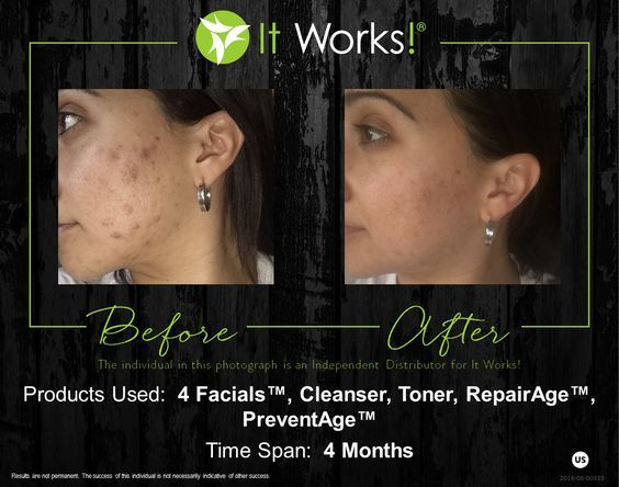 Www Sandydurre Com It Works Facials It Works Products Beauty Skin Care