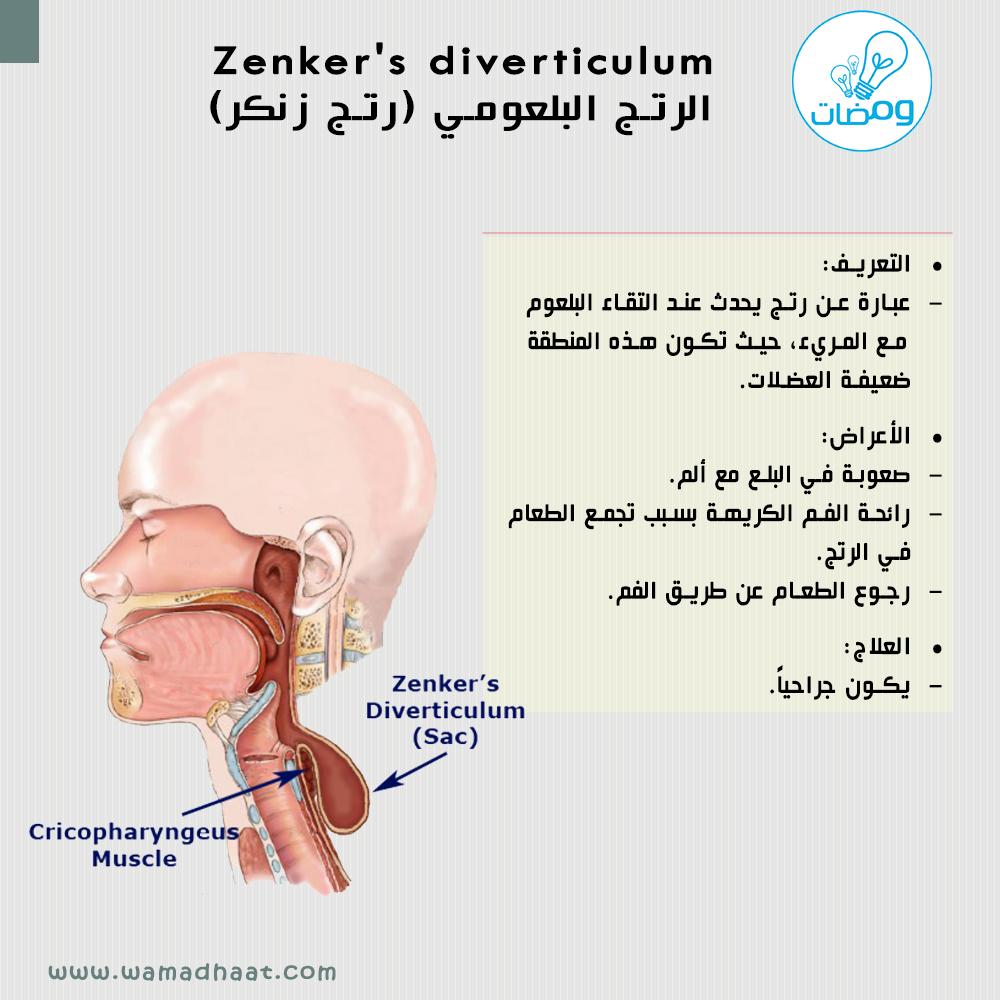 هل تعرف ما هو رتج زنكر المصدر كتاب الأمراض Goljan Pathology Mohammad Emad Wamadhaat Movie Posters Movies Muscle