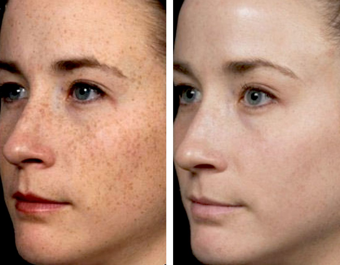fraxel | Fraxel | Age spot removal, Brown spots on face, Age