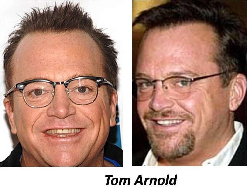 Tom Arnold Hair Transplant Surgery Celebrity Hair Loss