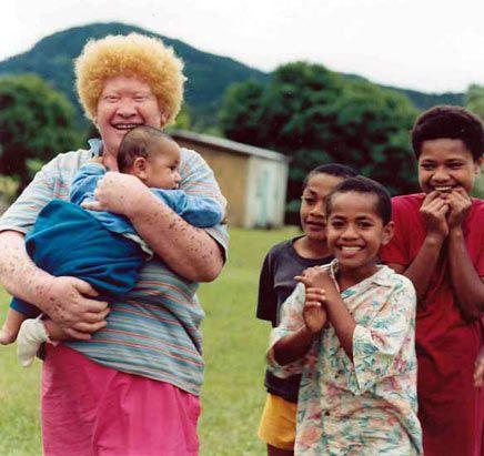 People In Fiji Fiji Culture Fiji Islands Albino