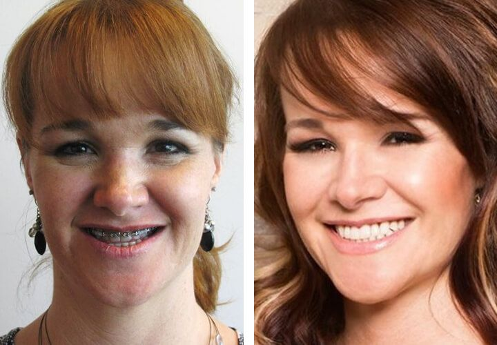 Before After Photos Patients Of Robinson Cosmetic Surgery