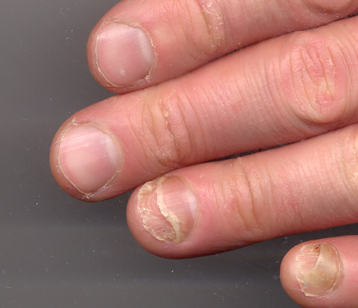 Onycholysis Refers To The Lifting Of Nail Plate Either Up From Underlying Bed