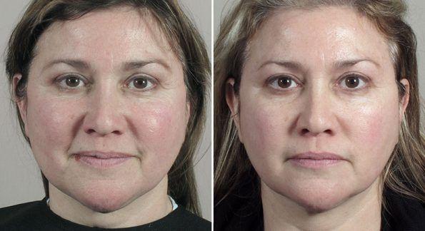 Halo Ultherapy Ultherapy Skin Resurfacing Treatment Laser Skin Resurfacing