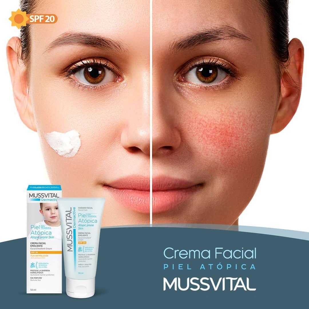 Novedad Crema Facial Mussvital Formula Especifica Dermoprotectora Para El Cuidado De La Piel Atopica Rosacea Dermatitis Sensibl Instagram Posts Instagram