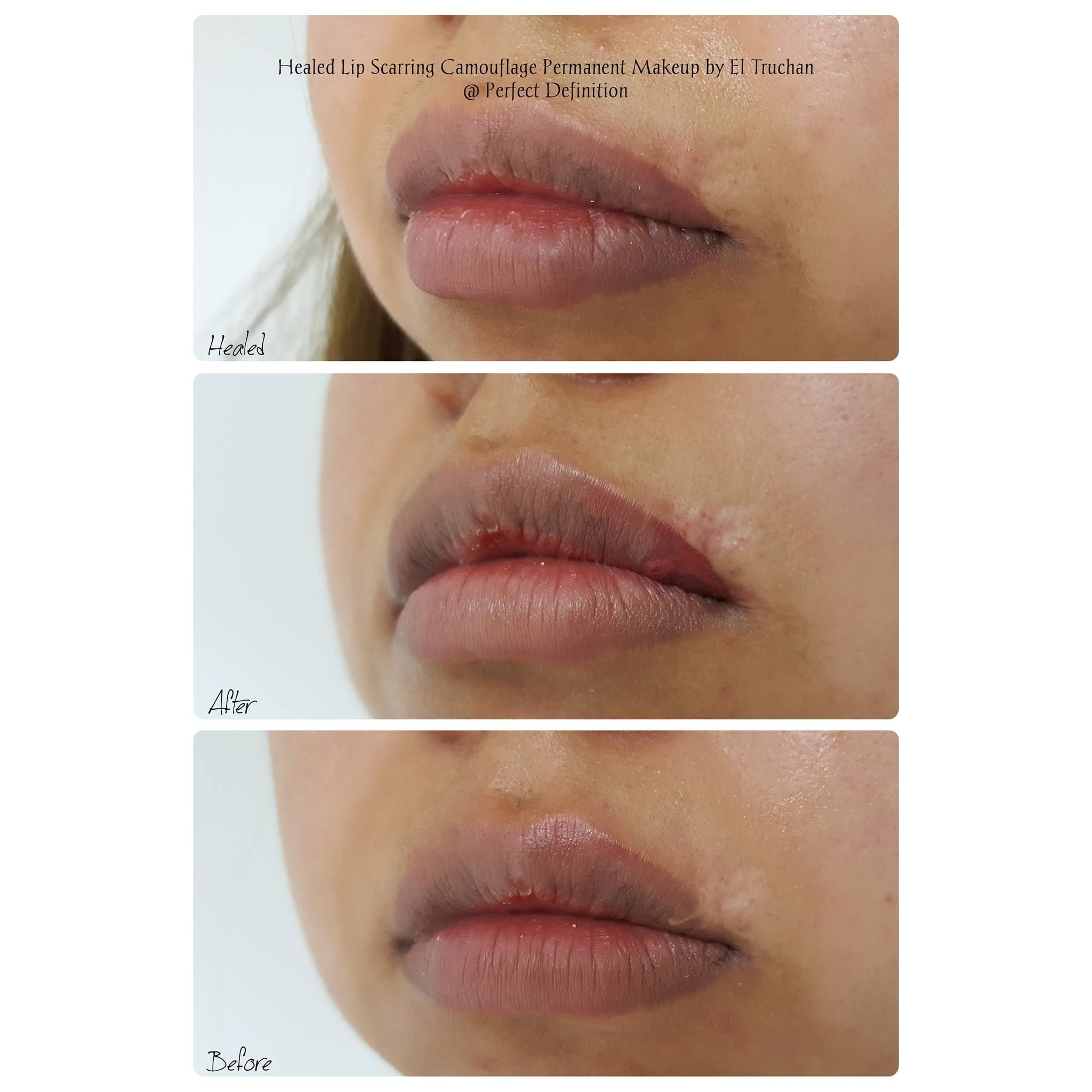 Healed Lip Scarring Camouflage Permanent makeup, Lip