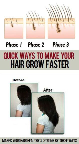 3 Simple Ways To Make Your Hair Grow Faster Grow Hair Faster Grow Hair How To Grow Your Hair Faster