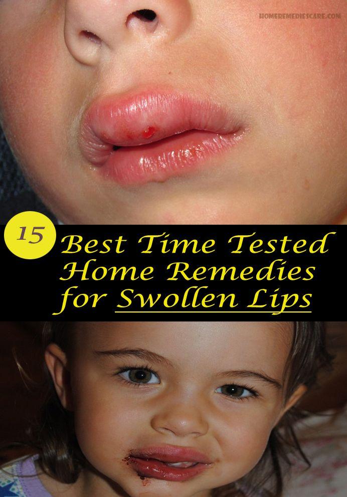 c9a0021d9eb5f9e2d64a5ac0610eaa63 - How To Get Swelling To Go Down On Lip