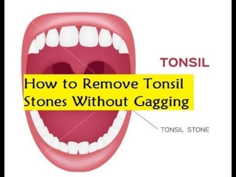 how to clean tonsil stones