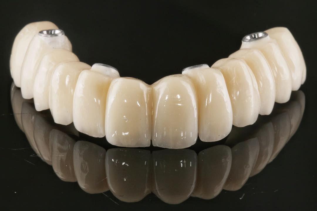 Rehabilitación sobre 4 implantes de bioHPP composite.  #anaxdent #proarch #bredent #peek #biohpp #straumann #implantesdentales  #laboratoriodental  #esteticadental