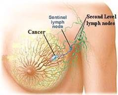 Can hoshimotos disease cause cystic breasts