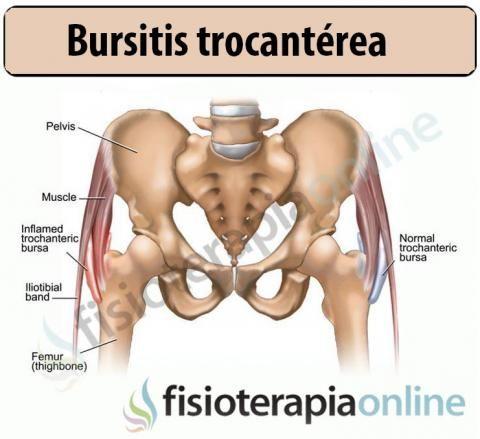 Trocanteritis o bursitis trocanterea en la cadera | Fisioterapia ...