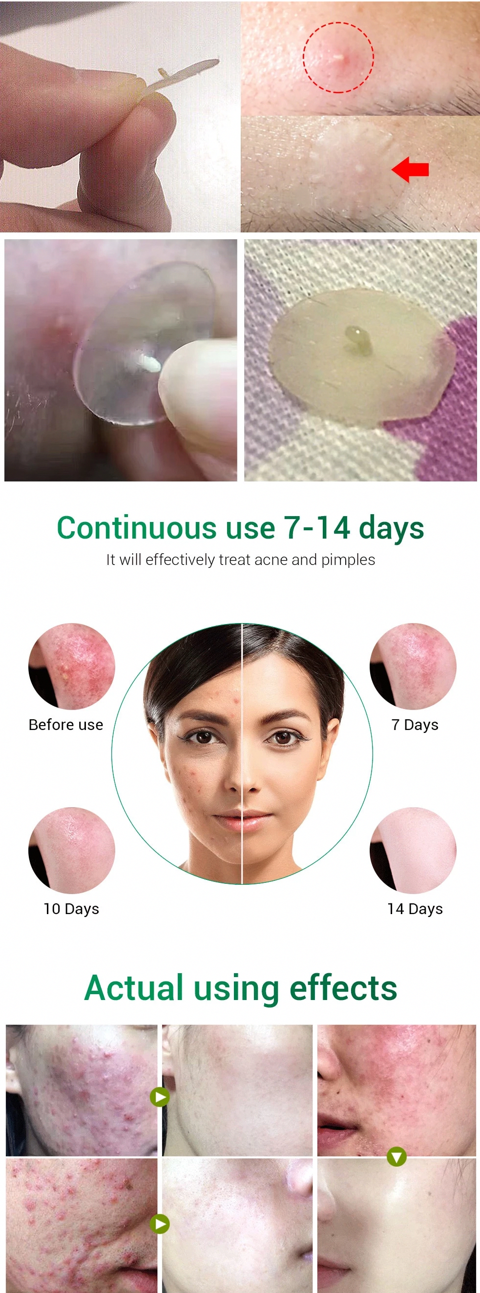 ACNE PIMPLE PATCH FACE MASK in 2020 Warts on face, Sun