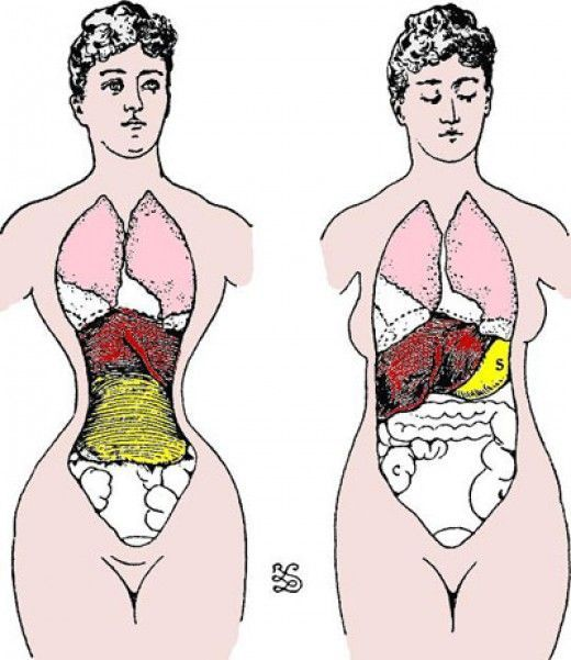 Pin On Health Anatomy Medical Info