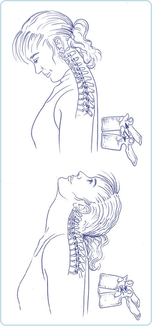 Pin von Allison Daly auf Eric Franklin | Pinterest | Medizin ...