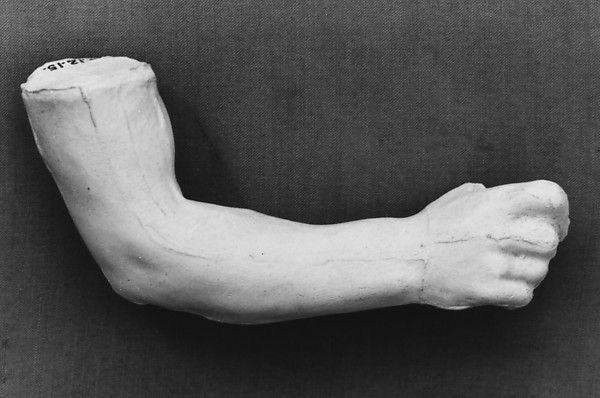 Study of an arm