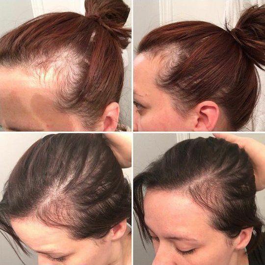 You Can Tackle Hair Loss Naturally   Postpartum hair loss ...