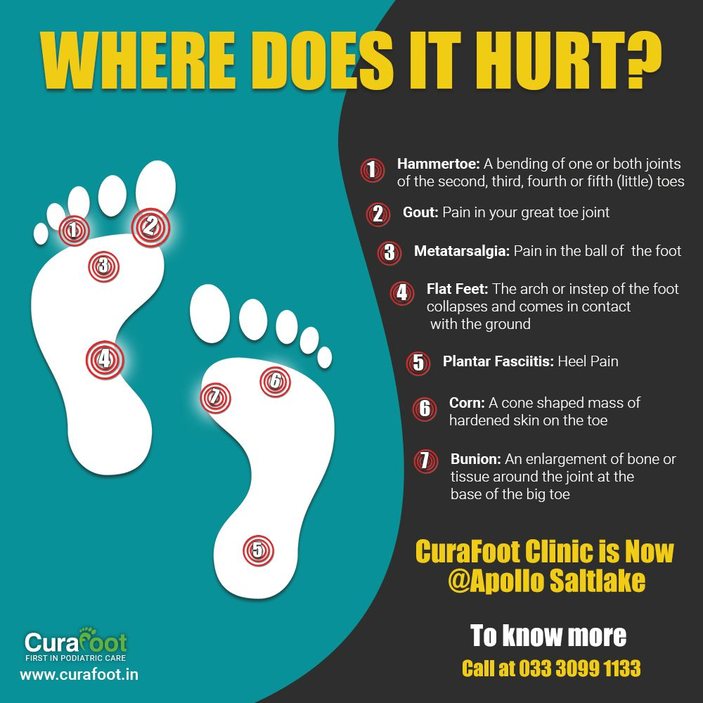 Get your feet checked at the curafoot apollo clinic salt
