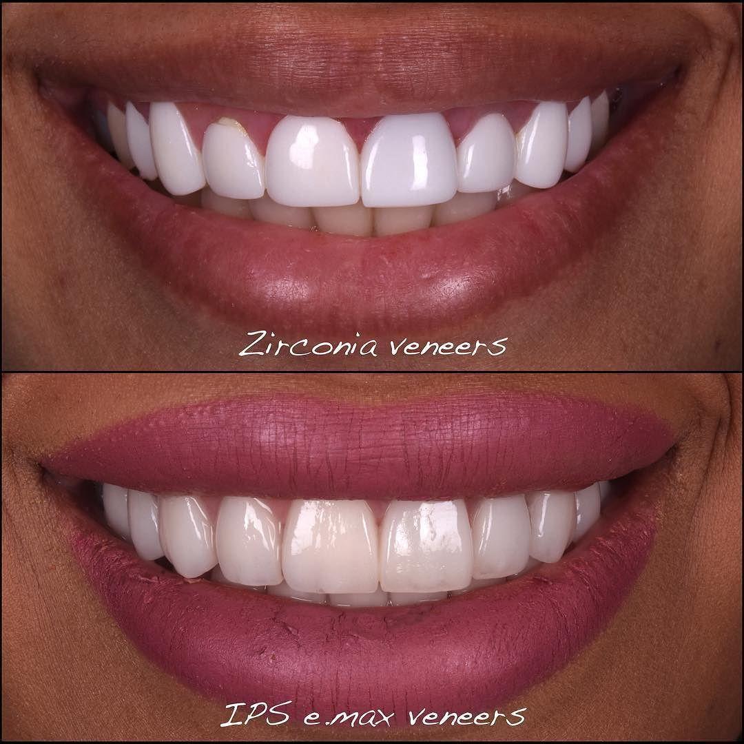 As A Prosthodontist I Had Never Seen Zirconia Laminate