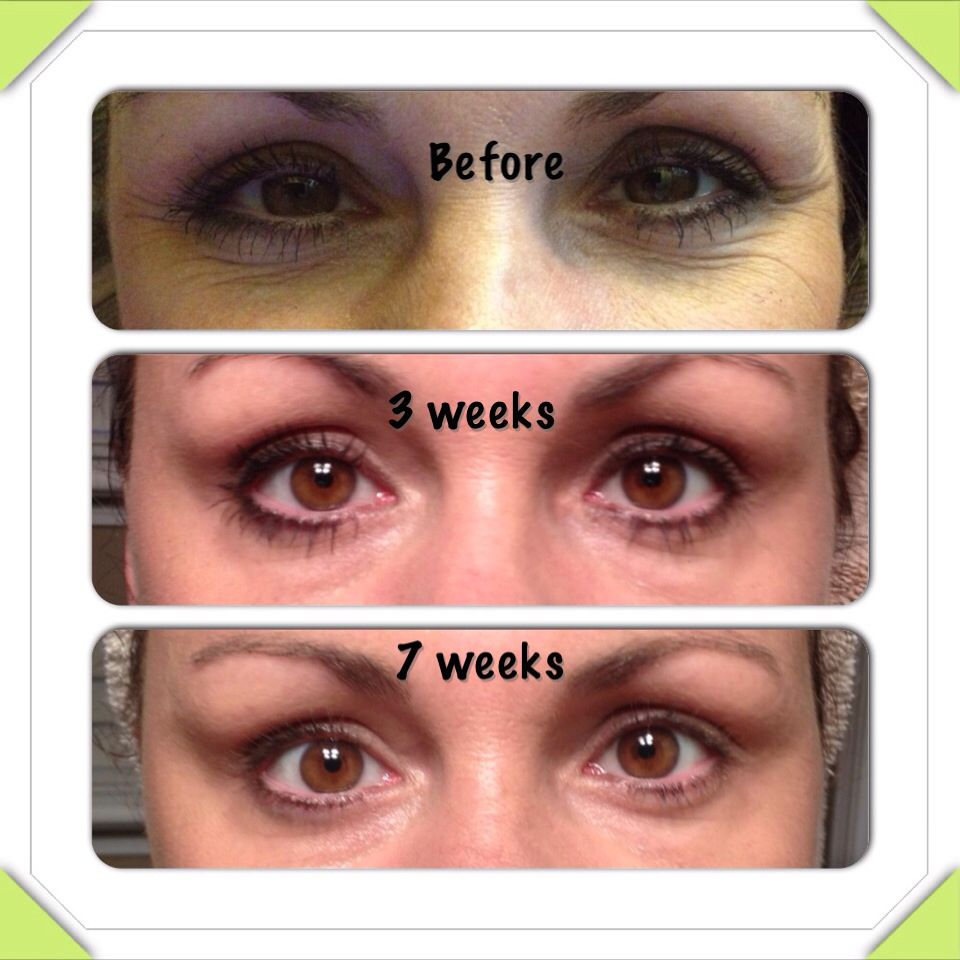 After 7 Weeks Of Rodan And Fields Redefine Anti Aging Regimen With