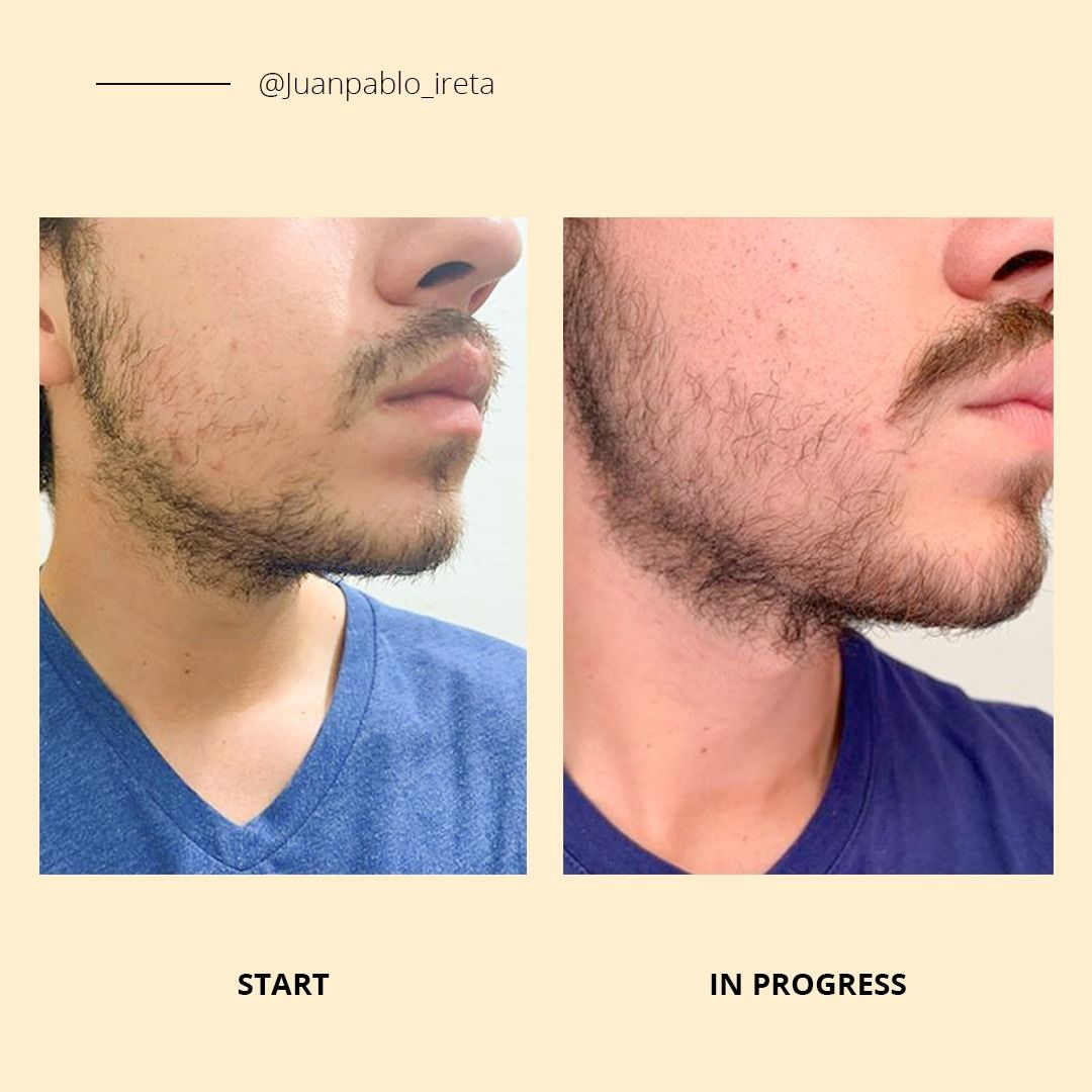 Before And After How To Get Thick Patchy Beard Growth Kit