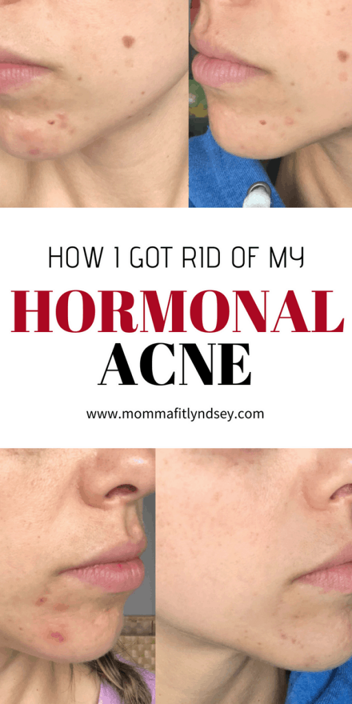Treat Hormonal Acne with Gut Healing Foods - Momma Fit Lyndsey -   19 how to get rid of acne ideas