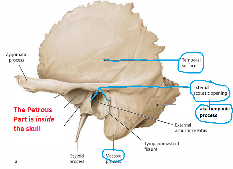 Temporal bone | Osteology | Pinterest | Axial skeleton, Rad tech and ...