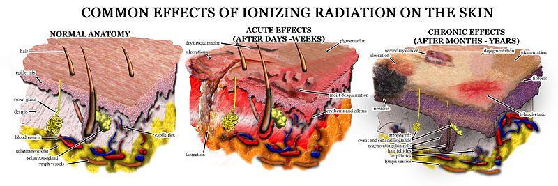 Fukushima radiation causing us insurance companies to