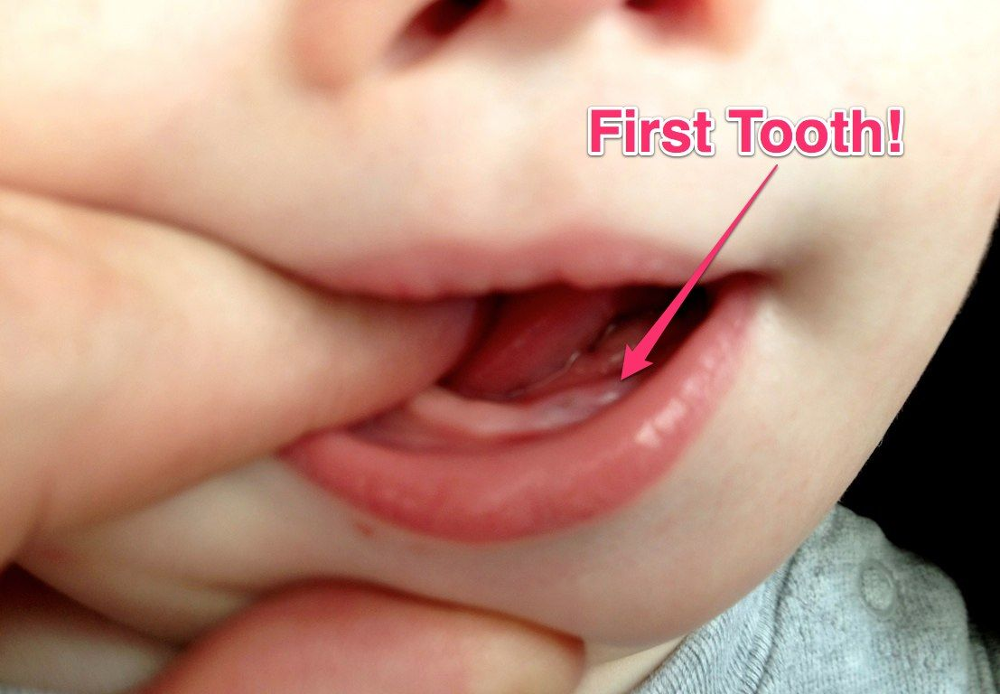 Milestone Alert: Our Baby's First Tooth! | First tooth, Baby teeth,  Teeth