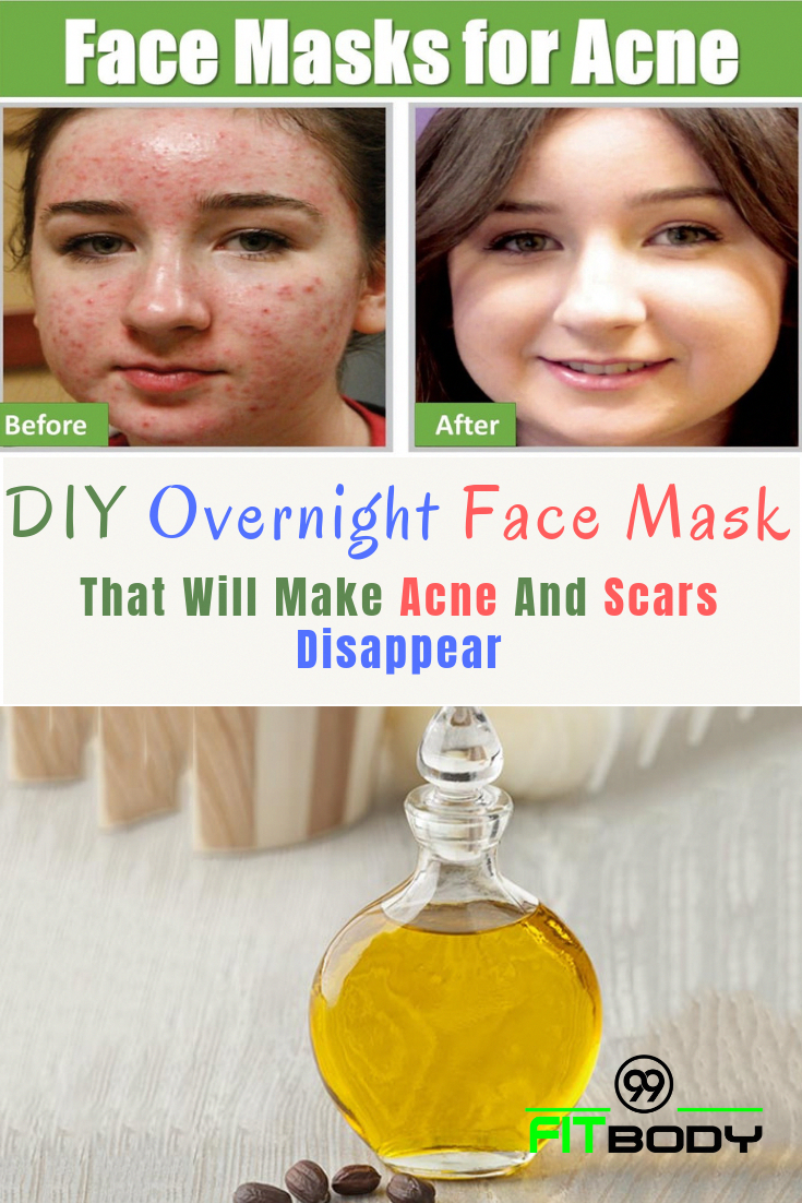 diy overnight face mask that will make acne and scars disappear