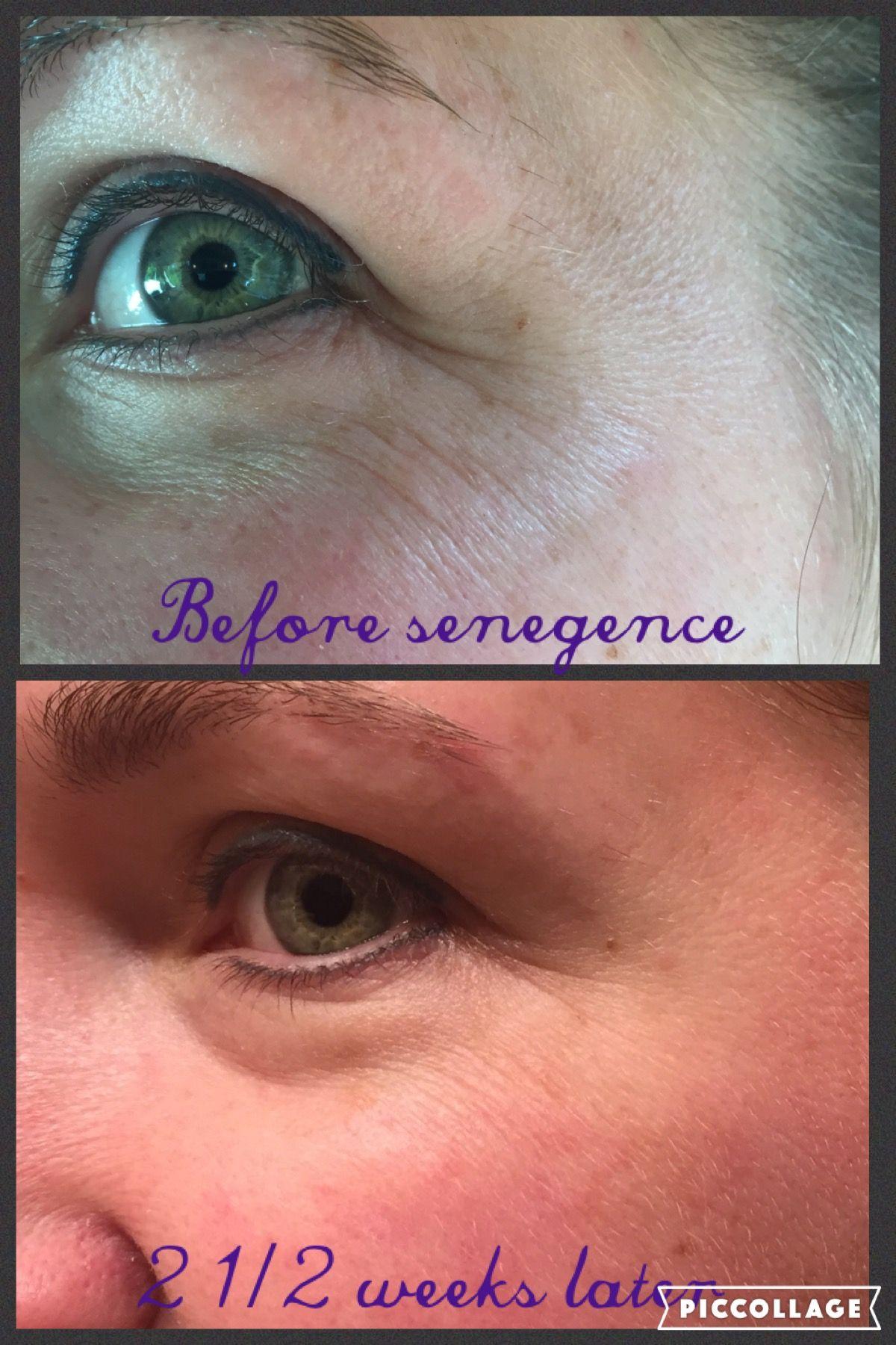 Senegence skincare results. distributor#198562