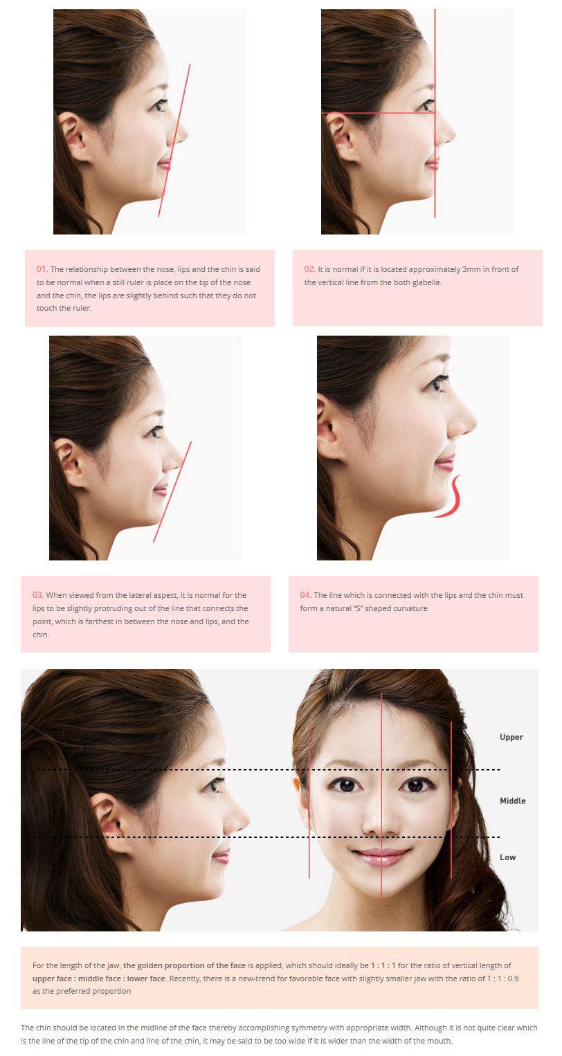 [facial Contouring  Ideal Location Of Chin] Plastic Surgery In Korea,  Cosmetic Surgery