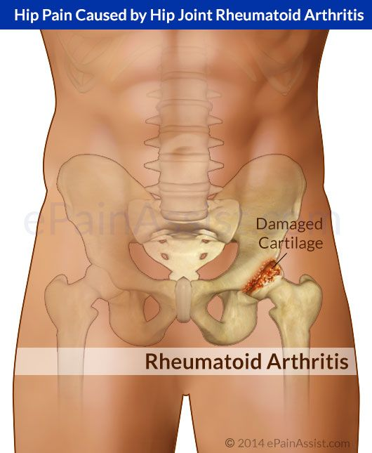 Hip Joint Rheumatoid Arthritis Causes Hip Pain